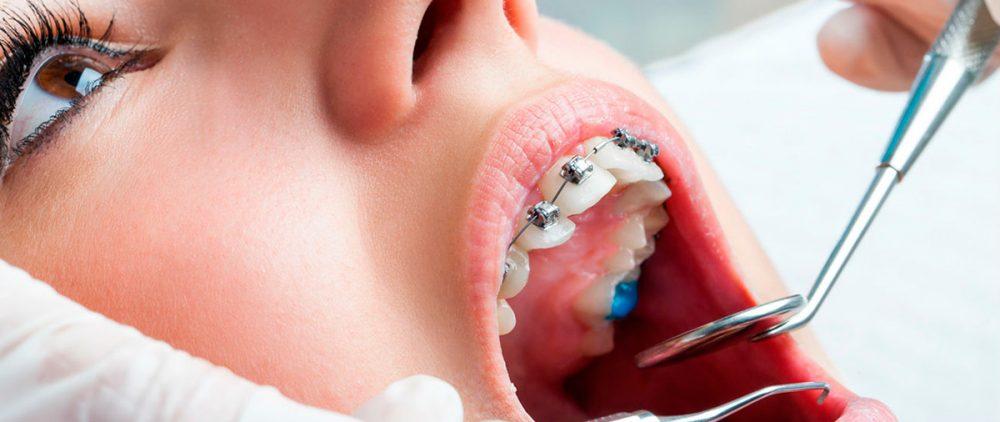Брекеты в современной стоматологии – новые формы лечения