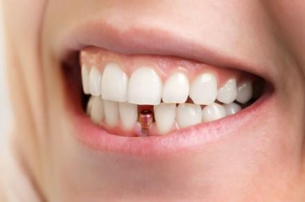 Имплантация зубов и коронки на зубы