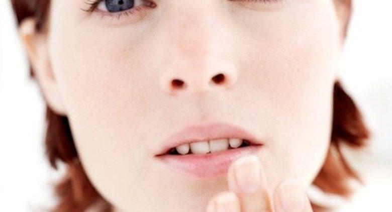 Простуда на губах: эффективные способы лечения