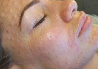 Ревитализация кожи лица