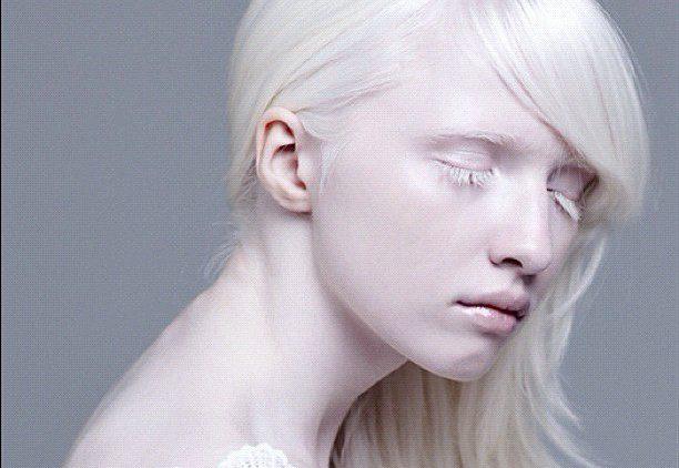 Альбиносы. Кто такие «белые люди»?