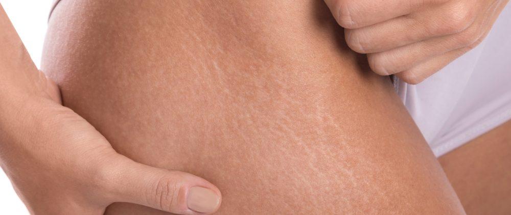 Растяжки на коже, как избавиться от растяжек